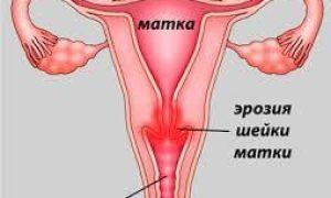 Эрозия шейки матки при беременности: можно ли рожать с этой патологией, есть ли влияние на плод, как ее лечить?
