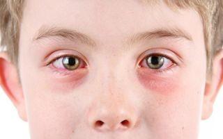 Инструкция по применению «дексаметазона» детям: дозировки и курсы приема глазных капель