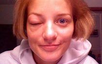 Лечение укусов мошки у детей: чем снять отек, если заплыл глаз или опухла нога?