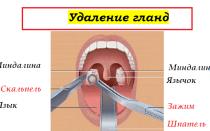 У ребенка постоянно красное рыхлое горло — что это значит и чем лечить?