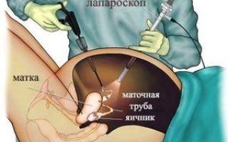 Понятие и симптомы поликистоза яичников, вероятность наступления беременности, особенности лечения