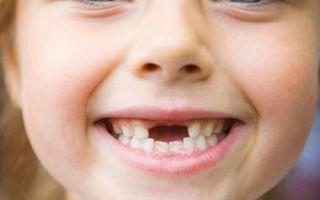 Что делать, если у ребенка болит зуб — какими лекарствами и средствами можно обезболить в домашних условиях?