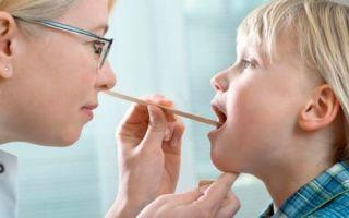 Сироп «стодаль» от кашля для грудничков и детей от 1 года: инструкция по применению и аналоги препарата