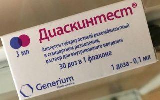 Альтернативы манту для ребенка по закону: анализ крови, мочи и другие способы проверки вместо пробы на туберкулез