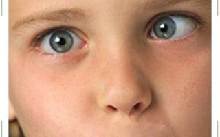 Причины амблиопии у детей, лечение «ленивого глаза» средней и высокой степени тяжести