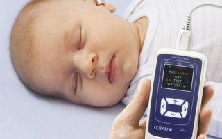 Аудиологический скрининг для проверки слуха новорожденных — что это такое и как он проводится?