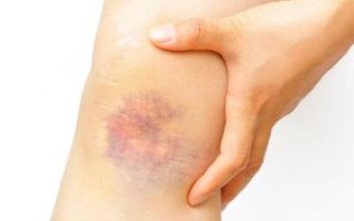 Почему у ребенка на ногах и по телу без причины появляются синяки — что это может быть?