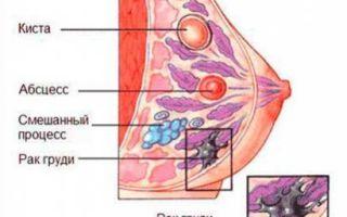 Нагрубание молочной железы при грудном вскармливании: лечение уплотнений и «шишек» у кормящей мамы в период лактации