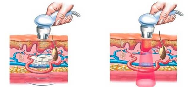 Применение ультразвука и физиотерапии при лактостазе: узи молочных желез и лечение при грудном вскармливании