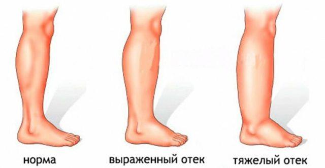 Почему после родов отекают ноги, когда проходят послеродовые отеки и как от них избавиться?