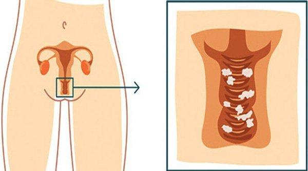 Препараты амоксициллина при грудном вскармливании: амоксиклав, аугментин и флемоксин солютаб для кормящей мамы