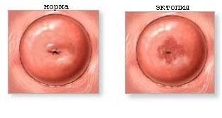 Эрозия шейки матки у женщин после родов: причины, симптомы, основные методы лечения