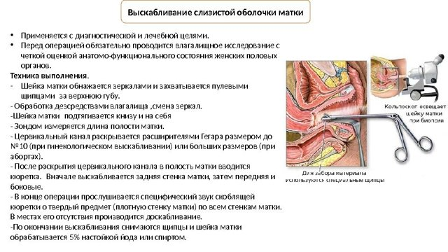 Выскабливание и вакуумная чистка полости матки при замершей беременности