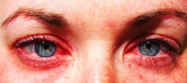 Чем снять неприятный зуд при аллергии у ребенка - какие лекарства и народные средства используют в домашних условиях?