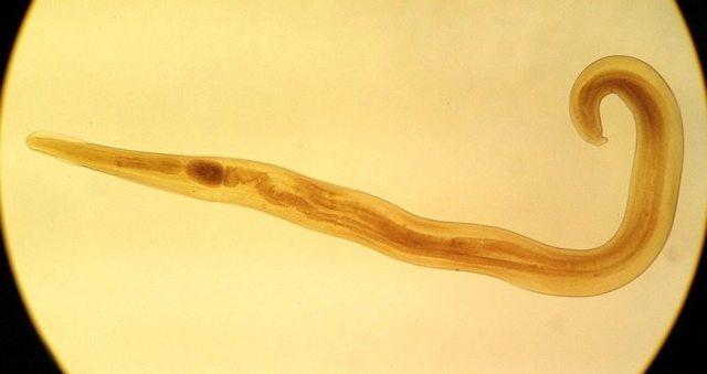 Глисты при беременности: какие симптомы, что делать и как лечить беременную женщину, как влияют паразиты на плод?