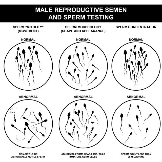 Астенотератозооспермия у мужчин: что это такое как ее лечить, можно ли забеременеть естественным путем с этим диагнозом?