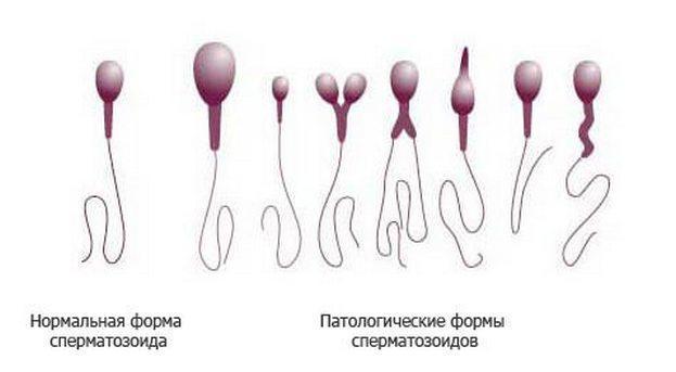 Как нужно сдавать спермограмму: подготовка, правила сдачи и процедура проведения в кабинете и домашних условиях