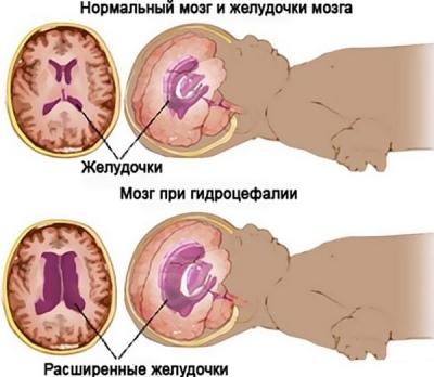 Расширение желудочков головного мозга: последствия увеличения и асимметрии у новорожденных и грудничков