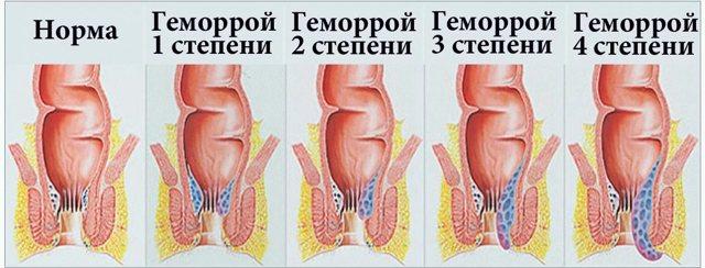 Лечение послеродового геморроя при грудном вскармливании: свечи и мази, разрешенные в период лактации