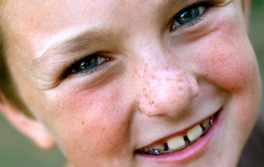 Почему на коже у ребенка может появиться белое пятно, что означает этот симптом?