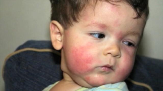 Когда ребенку можно дать мед: оптимальный возраст и первые симптомы аллергии до 3 лет
