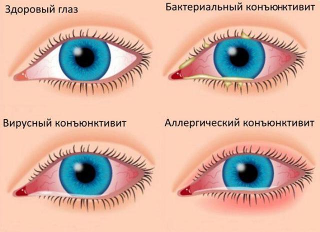 Лучшие лекарства от конъюнктивита: глазные капли и мази для детей разного возраста