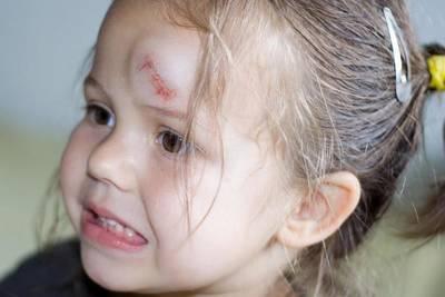 Что делать, если ребенок ударил затылок: на что обратить внимание и какие бывают последствия ушиба головы?