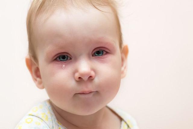 Зондирование слезного канала глаз у детей до года: как проходит операция у новорожденных, какие есть последствия?