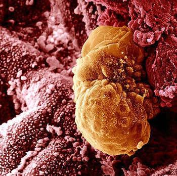 Как себя вести после подсадки эмбрионов при эко, когда они должны прижиться и как понять, что имплантация произошла?
