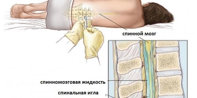 В чем разница между эпидуральной и спинальной анестезией, какая безопаснее и что лучше выбрать?