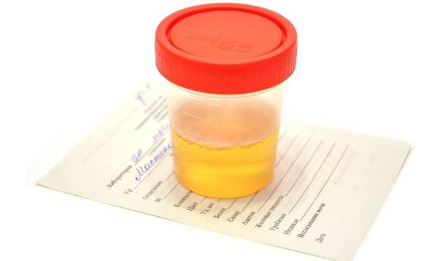Почему в моче у ребенка повышены эритроциты - каковы причины и нормальные показатели?