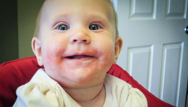Причины появления сыпи у ребенка на подбородке: раздражение от слюней, аллергия и другие проблемы