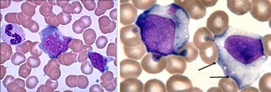 Мононуклеары в анализе крови ребенка: норма и причины появления атипичных клеток