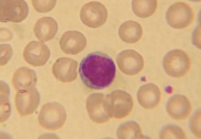 Причины повышенного и пониженного содержания базофилов в крови ребенка: чем грозит отклонение от нормы?