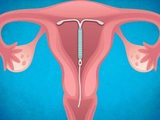 Внематочная беременность на раннем сроке: как определить, что покажет тест?
