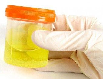 Как правильно собрать мочу ребенка для анализа на диастазу, каковы нормы показателя у детей разного возраста?