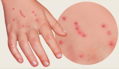 Как выглядят следы от укусов постельных клопов на теле у детей, какие симптомы их сопровождают?