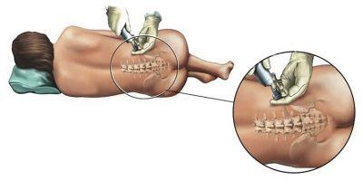 Какой метод лучше при проведении кесарева сечения: эпидуральная и спинальная анестезия или общий наркоз, в чем отличия?