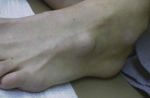 У ребенка на стопе с внешней стороны образовалась шишка: симптомы и лечение