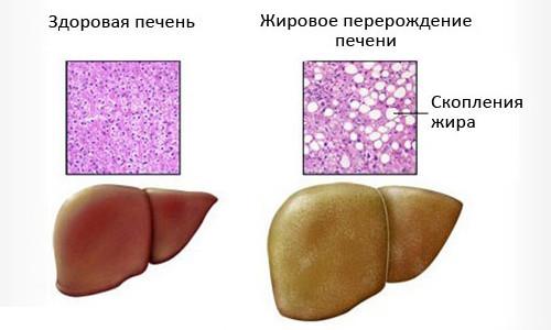 Гепатоз при беременности: симптомы, лечение и последствия холестатической и жировой патологии печени, послеродовая диета