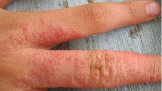 Как выглядит аллергическая реакция на лекарства с антибиотиками у детей и что при этом делать?