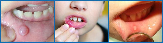 Сколько дней может длиться стоматит у детей, как долго лечится болезнь и как ускорить выздоровление?