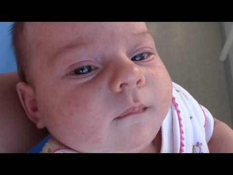 Фото гормональной неонатальной сыпи у новорожденных и ее отличие от других высыпаний