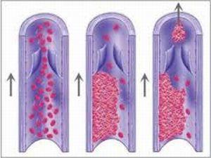 Особенности тромбофилии при беременности: наследственная и другие типы, сопутствующие симптомы, диагностика и лечение