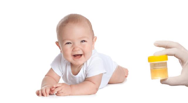 Причины повышения количества лейкоцитов в моче у грудничка и норма показателя у ребенка