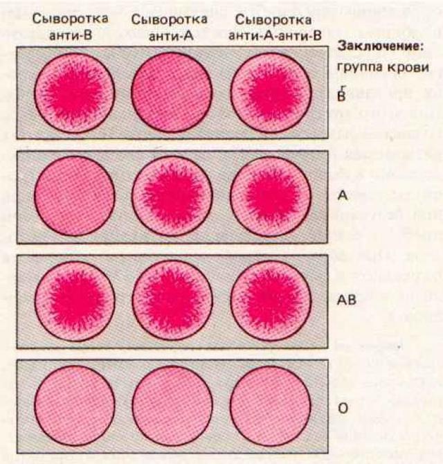 Как определить группу крови и резус-фактор у ребенка с помощью таблицы с показателями родителей?