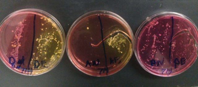 Все об анализе грудного молока кормящей матери на стерильность: посев на стафилококк и бактерии