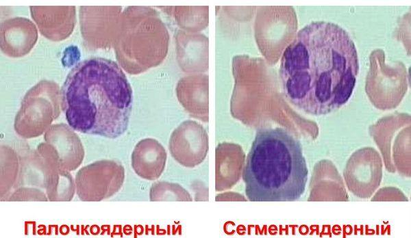 Почему у ребенка повышены сегментоядерные и палочкоядерные нейтрофилы: причины высоких показателей в анализе крови