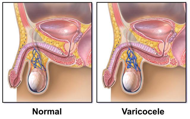 Что такое варикоцеле: симптомы и лечение у детей и подростков, показания к операции