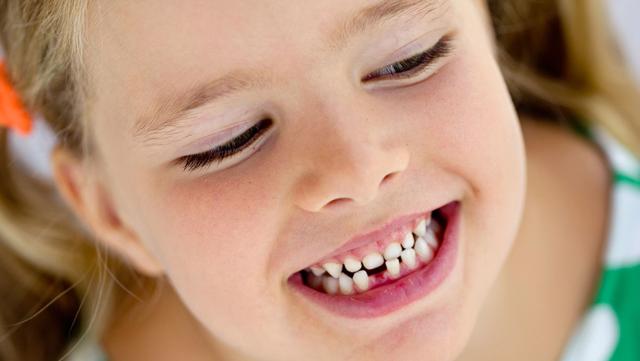 Какие коренные зубы еще молочные, а какие уже постоянные: симптомы и признаки у детей разных возрастов